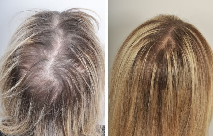 Restore Hair Using Own Blood photo before after