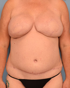 After Breast Reconstruction front view