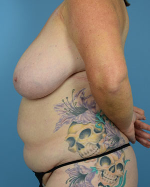 Before Breast Reconstruction - Right side view