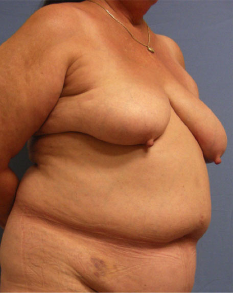 Before Breast Reconstruction - Right view