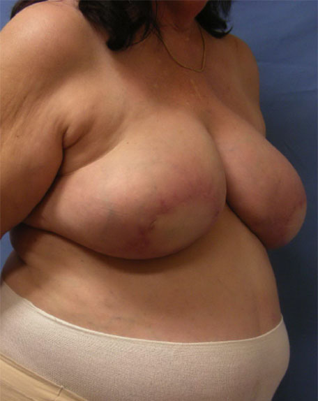 After Breast Reconstruction - Right view