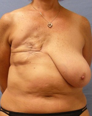 Before Breast Reconstruction front view