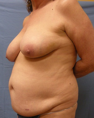 Before Breast Reconstruction - Left view