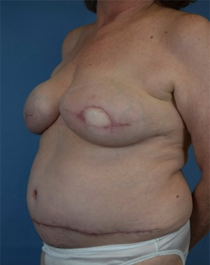 After Breast Reconstruction - Left view