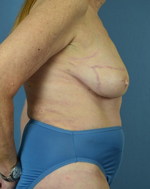 After Breast Reconstruction - Right side view