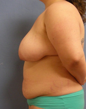 Before Breast Reconstruction - Left side view