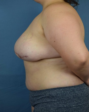 After Breast Reconstruction - Left side view