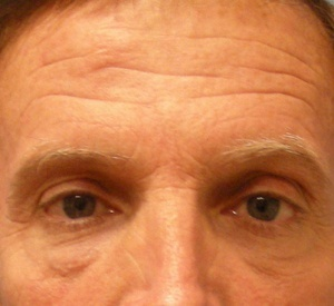 Before Blepharoplasty front view