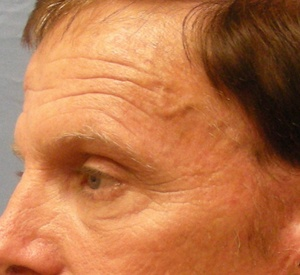 Before Blepharoplasty-Right side view