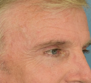 After Eyelid Surgery and Brow Lift Left Angle