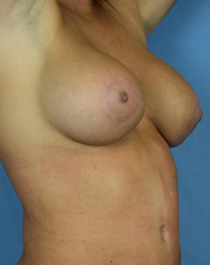 After Breast Augmentation Right side view