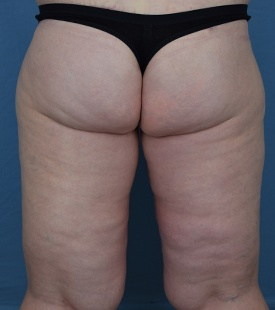 After Thigh Lift Back