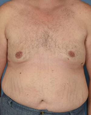 After - Male Breast Reduction - Front View