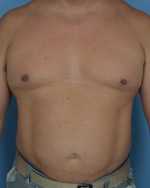 After - Liposuction - Front View
