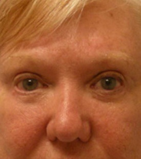 After - Blepharoplasty (Eyelid Surgery) - Front View