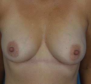 After - Breast Augmentation - Front View