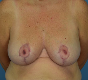 After - Breast Reduction - Front View