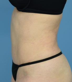 After - Tummy Tuck - Left View