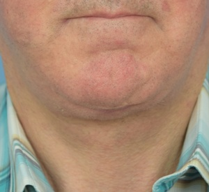 After - Neck Lift - Front View