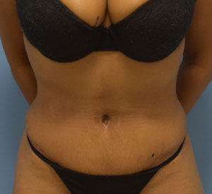 After - Tummy Tuck - Front View