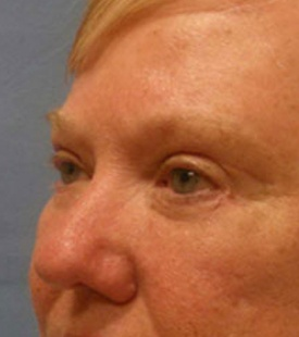 After - Blepharoplasty (Eyelid Surgery) - Left Angle View