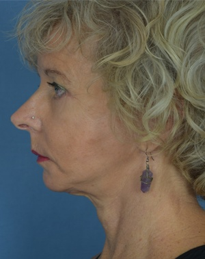 After Face Lift - Left Side View