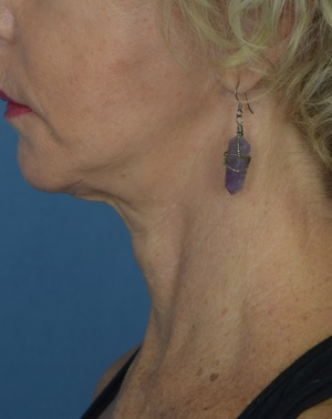 After Neck Lift - Left Side View