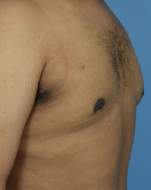 After - Male Breast Reduction - Left Angle View