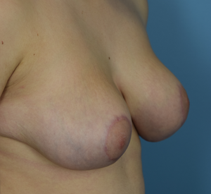 After - Breast Reduction - Left Angle View