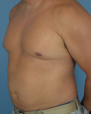 After - Liposuction - Left Angle View