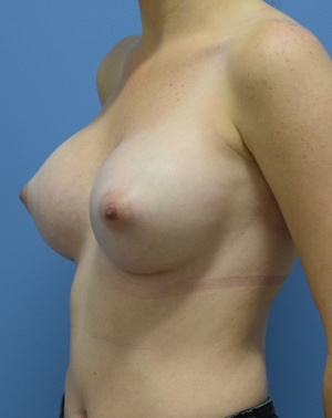 After - Breast Augmentation - Left Angle View