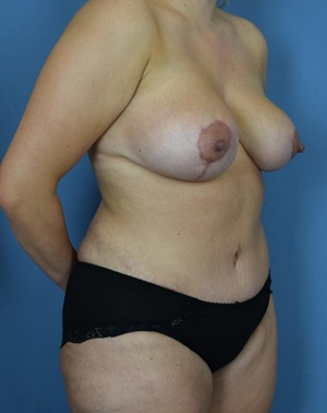 After - Mommy Makeover - Left Angle View