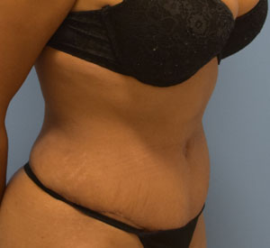 After Lipo - Left Angle View