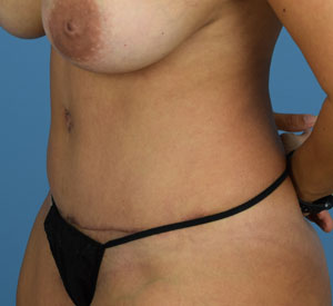 After - Tummy Tuck - Left Angle View
