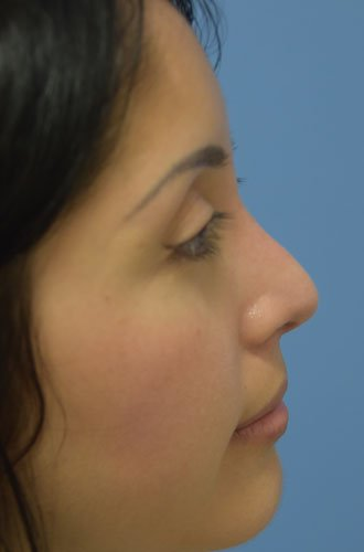 After Rhinoplasty - Left Side View