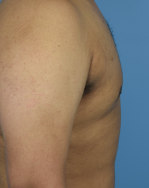 After Male Breast Reduction - Left Side View
