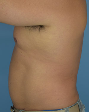 After Liposuction - Left Side View
