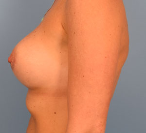 After Breast Augmentation - Left Side View