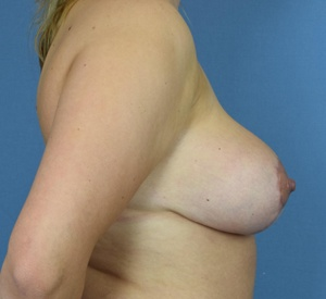 After Breast Reduction - Left Side View