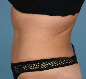 After Tummy Tuck - Left Side View