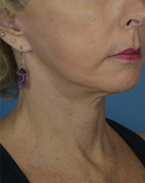 After Neck Lift - Right Side View