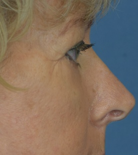 After Blepharoplasty (Eyelid Surgery) - Right Side View