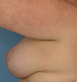 After Breast Lift - Right Side View