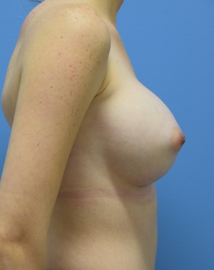 Ambay Plastic After Breast Augmentation - Right Side View- Breast Augmentation