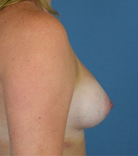 After Breast Augmentation - Right Side View