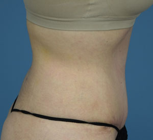 After Tummy Tuck - Right Side View