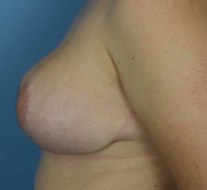 After Breast Reduction - Right Side View