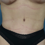 After - Tummy Tuck front view