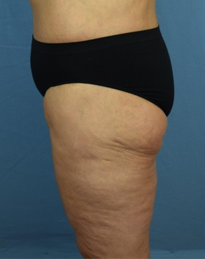 After Thigh Lift - Left Side View