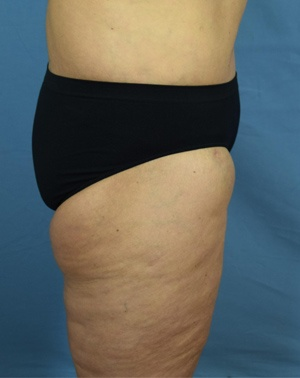 After Thigh Lift - Right Side View